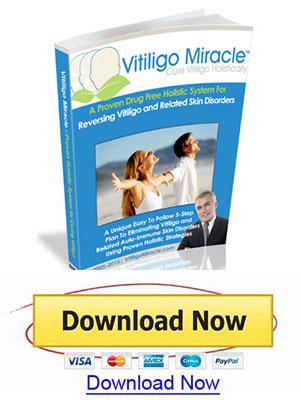 vitiligo miracle book download promoted vitiligo permanently