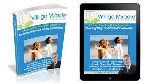 Vitiligo Miracle Book Review